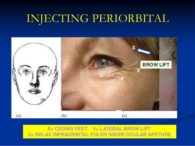 Using Botox for Periorbital Rejuvenation
