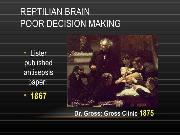 REPTILIAN BRAIN POOR DECISION MAKING <ul><li>Lister published antisepsis paper:  </li></ul><ul><li>1867 </li></ul>Dr. Gros...