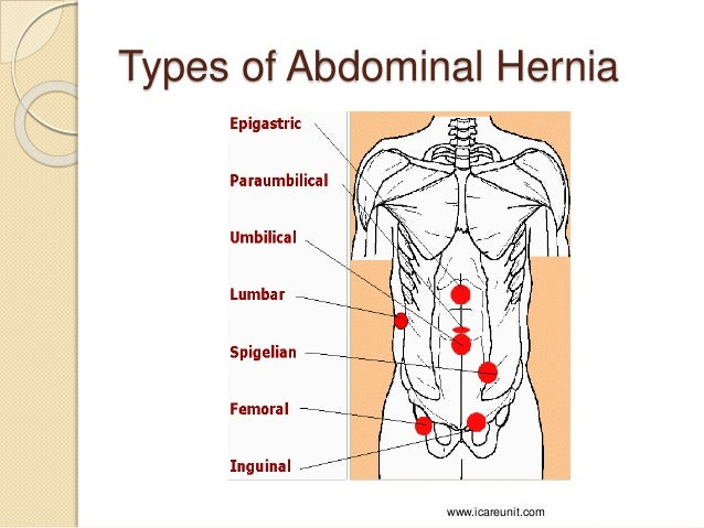 diagram of types of hernias images