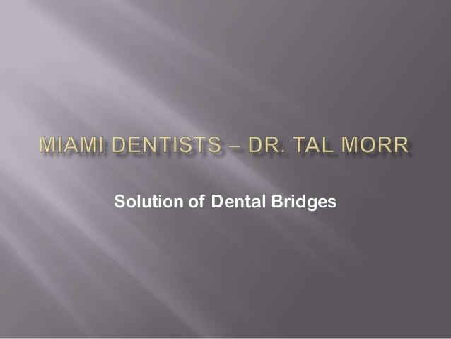 Solution of Dental Bridges