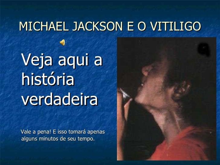 MICHAEL JACKSON E O VITILIGO <ul><li>Veja aqui a história  verdadeira </li></ul><ul><li>Vale a pena! E isso tomará apenas ...