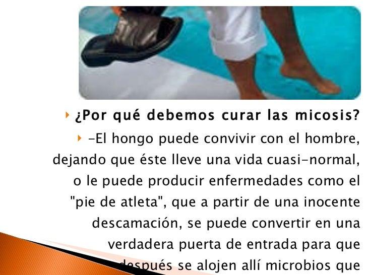 Los modos del tratamiento del hongo de uña en los pies