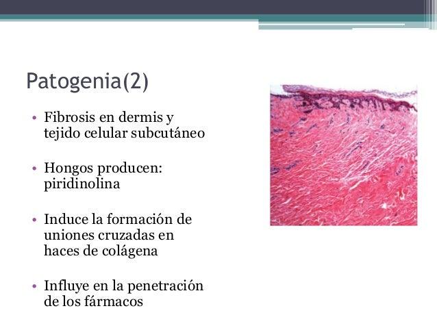 Como revelan la psoriasis