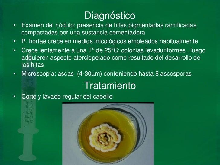 La crema del hongo lotseril
