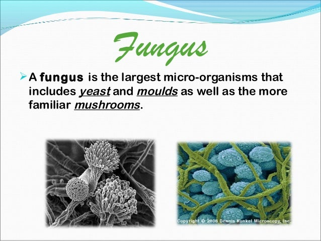 micro organisms notes Micro-organisms definition: an organism that is too small to be seen by the unaided eye, especially a single celled organism, such as a bacterium is called microorganism microorganisms are classified into four major groups these groups are bacteria, fungi, protozoa and some algae viruses are also microscopic.