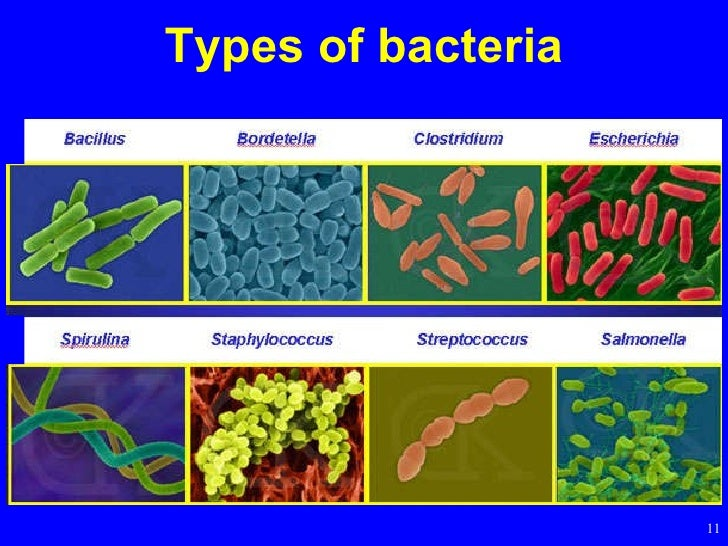 a short description of bacteria Sup][4] according to their functions in the human body, they are classified into three types: (1) symbiotic bacteria or probiotics, which are intestinal-dominant bacteria mainly composed of strict anaerobic bacteria such as lactic acid bacteria, bifidobacteria, bacteroides, eubacteria, and nitrobacteria.