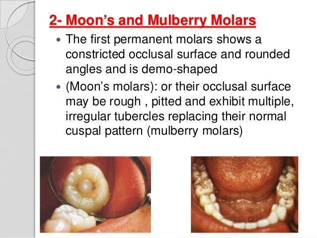Moon's mulberry molar-Cong syphilis | Gen Medicine | Pinterest