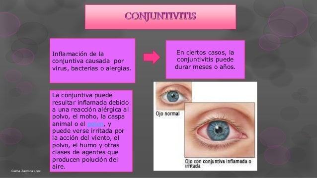 Inflamación de la conjuntiva causada por virus, bacterias o alergias. En ciertos casos, la conjuntivitis puede durar meses...