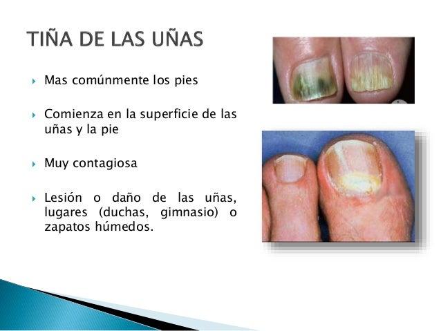 Cuanto ser curado el hongo sobre las uñas de los pies
