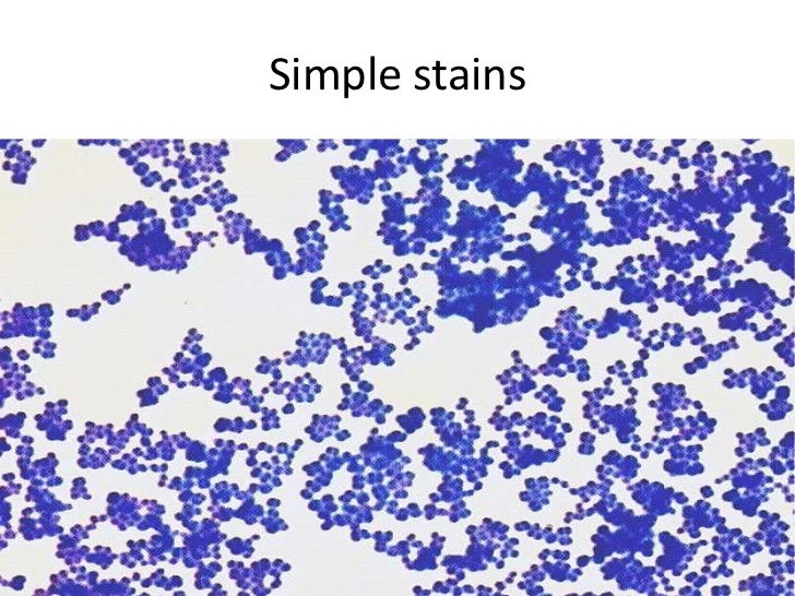 lab report on simple stain Documents similar to discussion microbiology simple stain skip carousel carousel previous  microbiology gram stain lab.