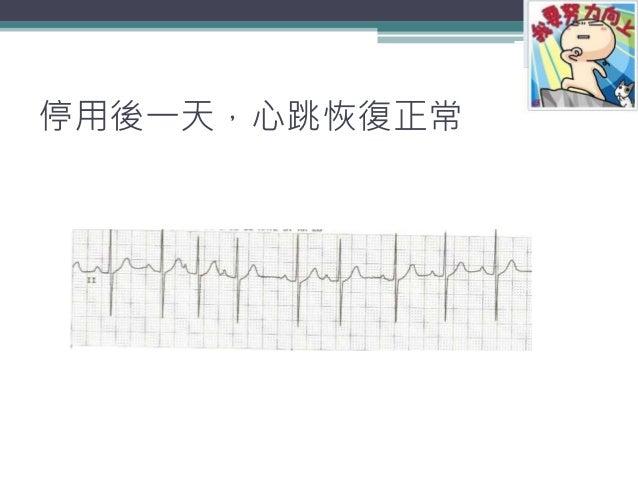 停用後一天,心跳恢復正常 15