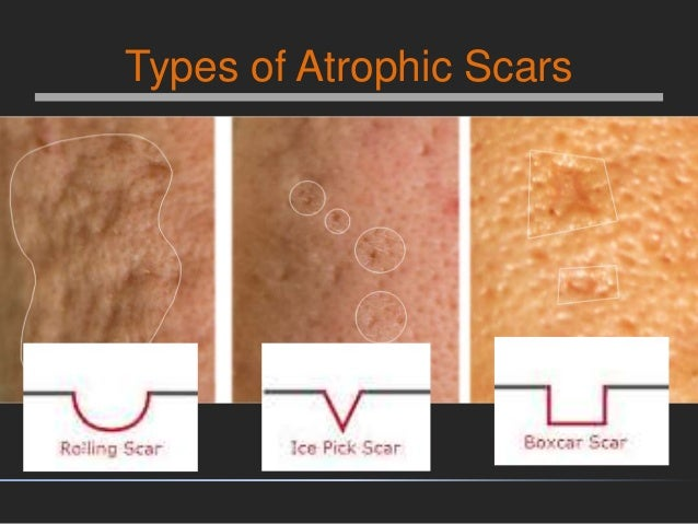 Microneedling Amp Growth Factors For Acne Scars