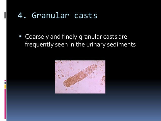 microscopic examination of urinary sediments