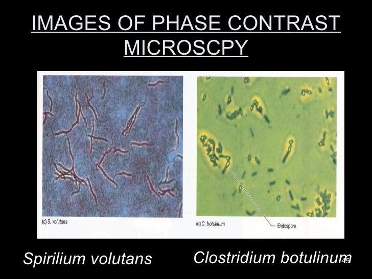 IMAGES OF PHASE CONTRAST MICROSCPY Clostridium botulinum Spirilium volutans
