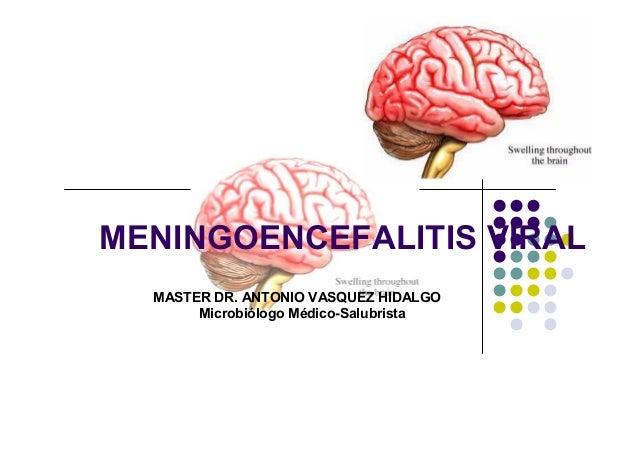 MENINGOENCEFALITIS VIRAL MASTER DR. ANTONIO VASQUEZ HIDALGO Microbiólogo Médico-Salubrista