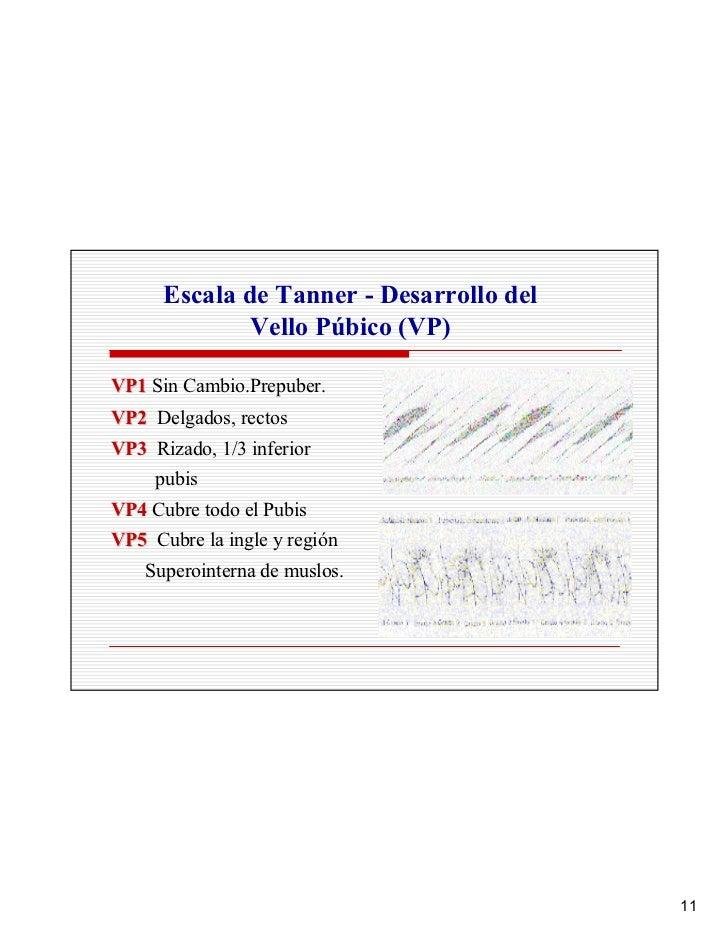 Escala de Tanner - Desarrollo del               Vello Púbico (VP)  VP1 Sin Cambio.Prepuber. VP2 Delgados, rectos VP3 Rizad...