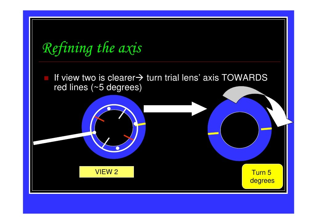 Refining the axis  If view two is clearer turn trial lens' axis TOWARDS  red lines (~5 degrees)            VIEW 2         ...