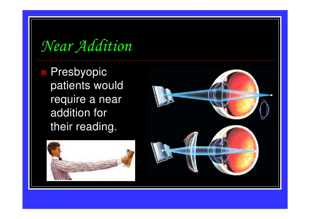Near Addition Presbyopic patients would require a near addition for their reading.