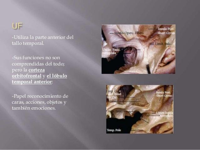 Anatomia microquirurgica del lobulo temporal.