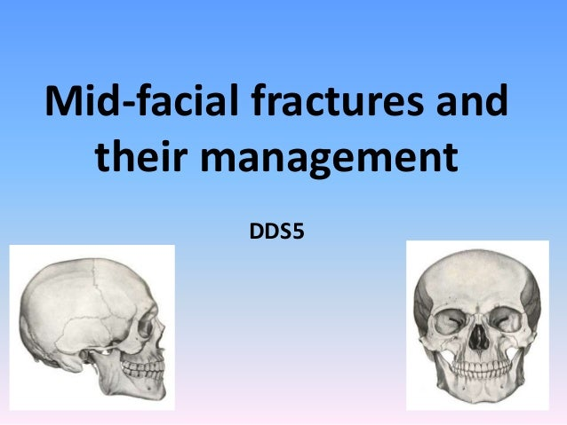 Mid-facial fractures and their management DDS5