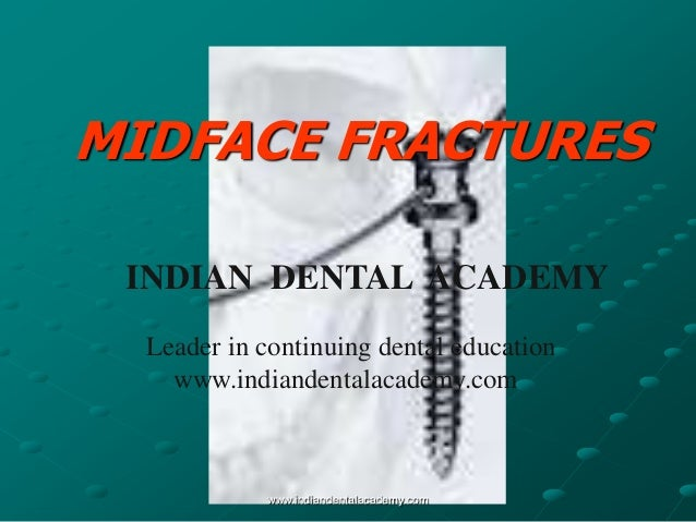 MIDFACE FRACTURES INDIAN DENTAL ACADEMY Leader in continuing dental education www.indiandentalacademy.com  www.indiandenta...