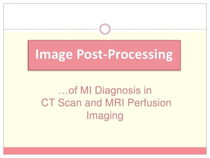 Myocardial Infraction Diagnosis Using Ct Scan Amp Mri