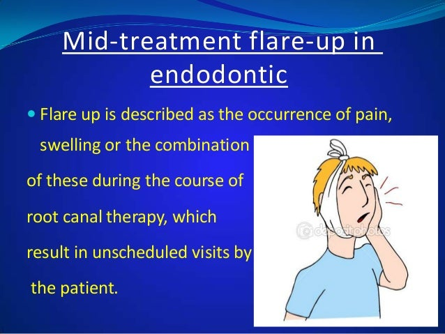 ENDODONTIC FLARE UP EPUB DOWNLOAD