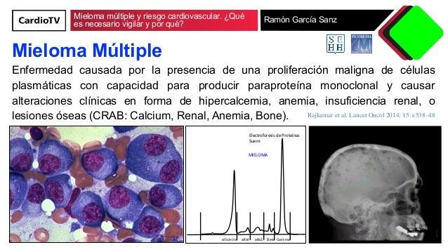 Mieloma multiple y riesgo cardiovascular. ¿Qué es necesario vigilar y por qué? Slide 2