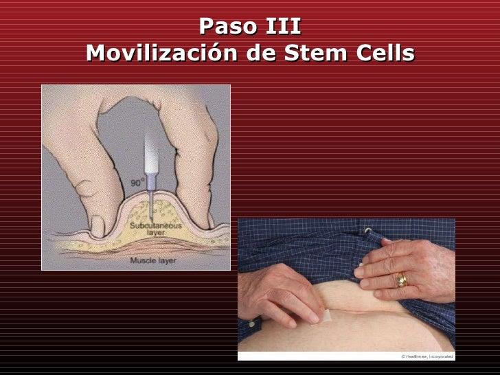 Trasplante de Células Madre para pacientes con Mieloma