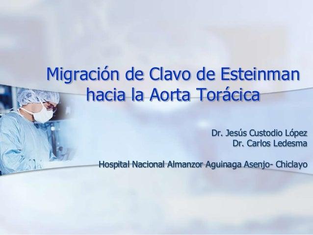 Migración de Clavo de Esteinmanhacia la Aorta TorácicaDr. Jesús Custodio LópezDr. Carlos LedesmaHospital Nacional Almanzor...