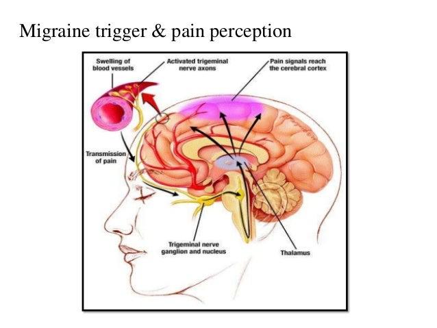 migraine migraine headache diagram