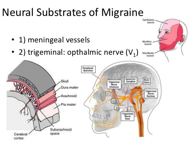 Diabetes And Migraines