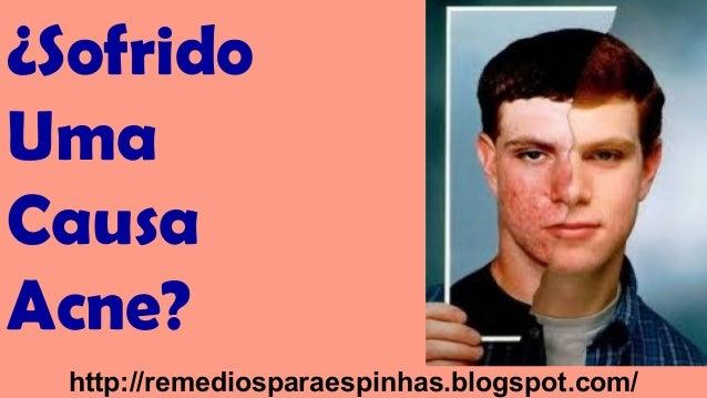 ¿Sofrido Uma Causa Acne? http://remediosparaespinhas.blogspot.com/