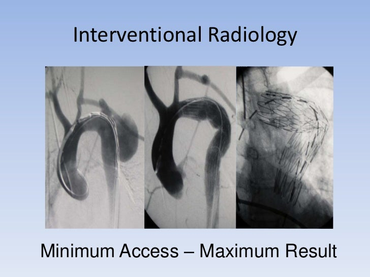 Interventional Radiology<br />Minimum Access – Maximum Result<br />