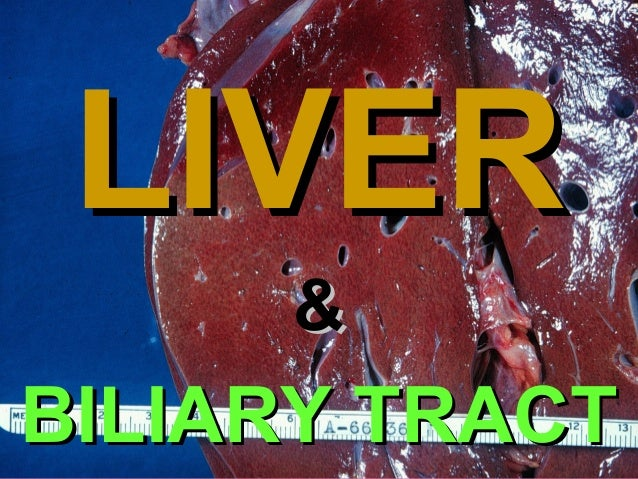 Chapter 18  LIVER &  BILIARY TRACT