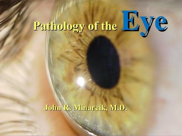 Pathology of the  Eye  John R. Minarcik, M.D.