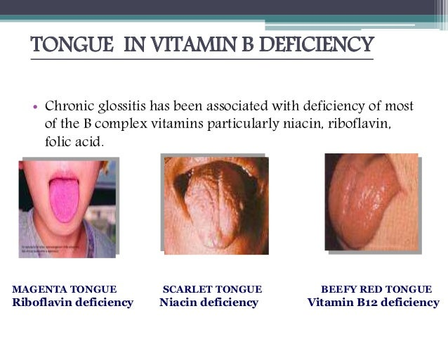 role of diet and nutrition B12 Deficiency Tongue
