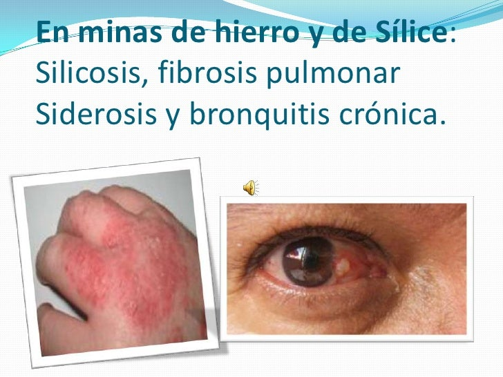 En minas de hierro y de Sílice:Silicosis, fibrosis pulmonarSiderosis y bronquitis crónica.