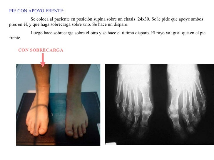 PIE CON APOYO FRENTE: Se coloca al paciente en posición supina sobre un chasis  24x30. Se le pide que apoye ambos pies en ...