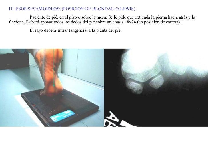 HUESOS SESAMOIDEOS: (POSICION DE BLONDAU O LEWIS) Paciente de pié, en el piso o sobre la mesa. Se le pide que extienda la ...