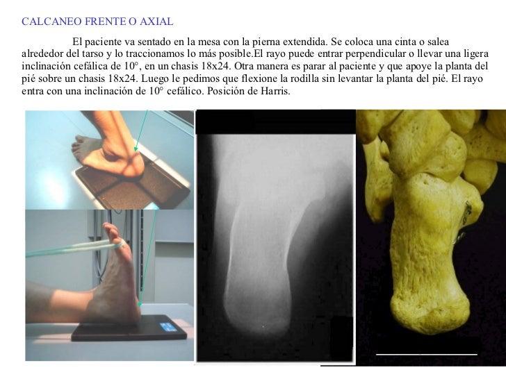 CALCANEO FRENTE O AXIAL El paciente va sentado en la mesa con la pierna extendida. Se coloca una cinta o salea alrededor d...