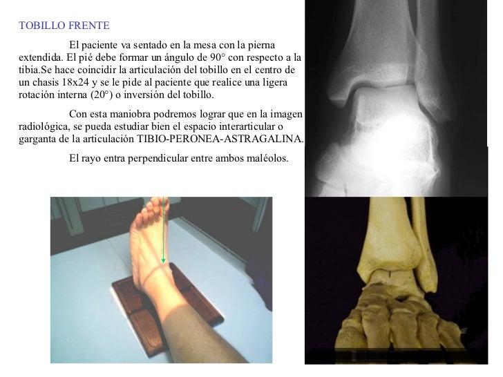 TOBILLO FRENTE El paciente va sentado en la mesa con la pierna extendida. El pié debe formar un ángulo de 90° con respecto...