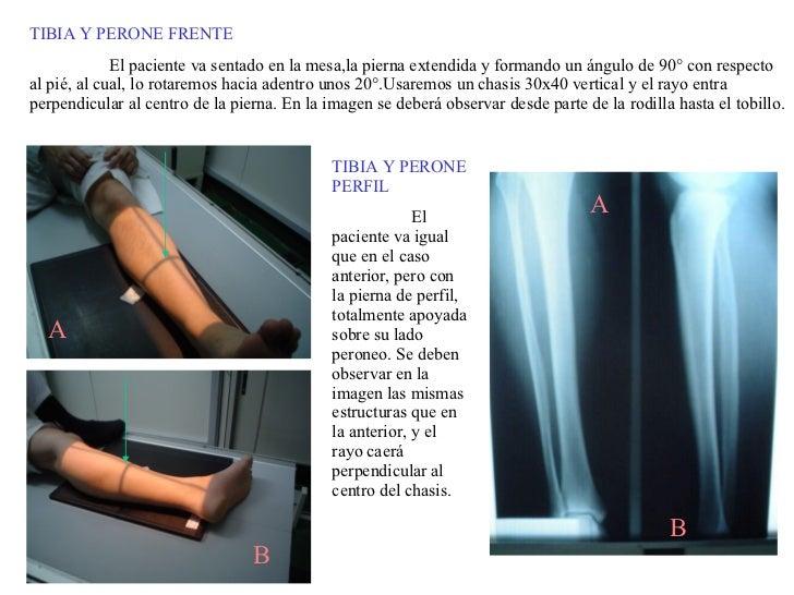TIBIA Y PERONE FRENTE El paciente va sentado en la mesa,la pierna extendida y formando un ángulo de 90° con respecto al pi...