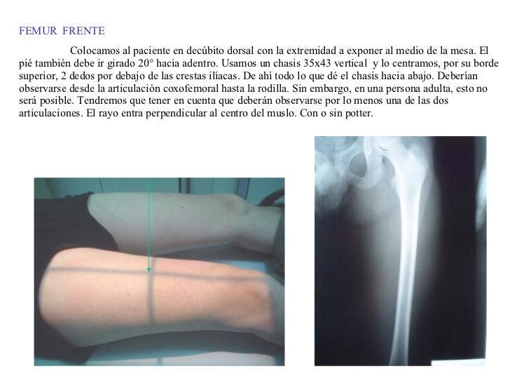 FEMUR  FRENTE Colocamos al paciente en decúbito dorsal con la extremidad a exponer al medio de la mesa. El pié también deb...