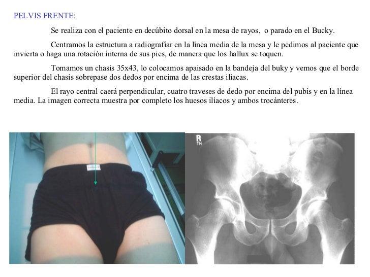 PELVIS FRENTE: Se realiza con el paciente en decúbito dorsal en la mesa de rayos,  o parado en el Bucky.  Centramos la est...