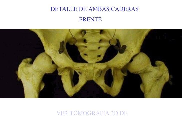 DETALLE DE AMBAS CADERAS FRENTE VER TOMOGRAFIA 3D DE LA PELVIS