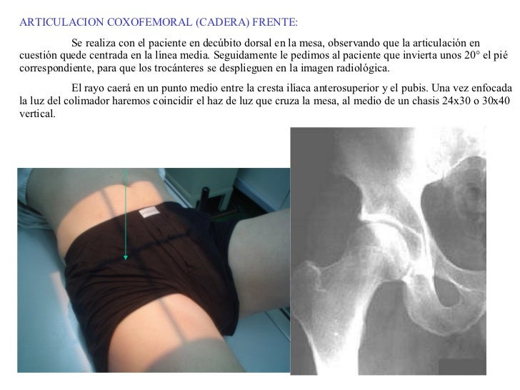 ARTICULACION COXOFEMORAL (CADERA) FRENTE: Se realiza con el paciente en decúbito dorsal en la mesa, observando que la arti...