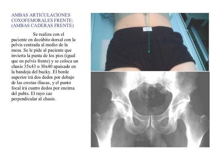 AMBAS ARTICULACIONES COXOFEMORALES FRENTE: (AMBAS CADERAS FRENTE) Se realiza con el paciente en decúbito dorsal con la pel...