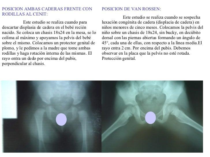 POSICION DE VAN ROSSEN: Este estudio se realiza cuando se sospecha luxación congénita de cadera (displacia de cadera) en n...