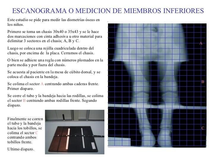 ESCANOGRAMA O MEDICION DE MIEMBROS INFERIORES Este estudio se pide para medir las dismetrías óseas en los niños. Primero s...